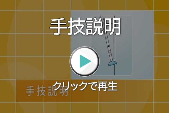手技の説明動画-クリックで再生